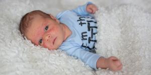 Mi bebé tiene granitos rojos en la cara: por qué y cómo quitarlos