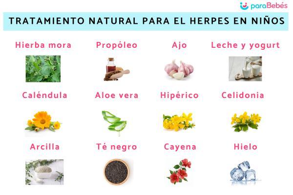 Tratamiento natural para el herpes en niños