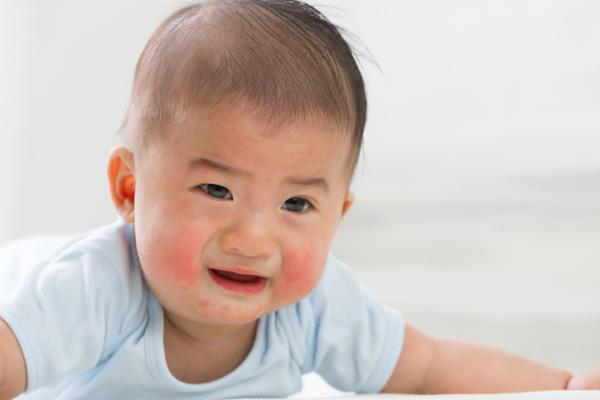 Sarpullido en bebés: causas y tratamiento - Eritema tóxico