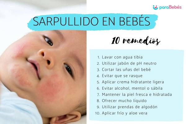 Sarpullido en bebés: causas y tratamiento - Remedios caseros para el sarpullido en bebés