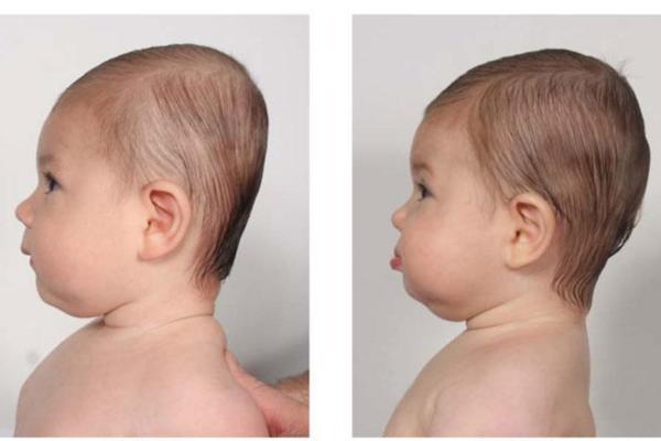 Plagiocefalia en el bebé: qué es y cómo evitarla